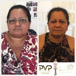 Projeto Vip Nutricional 13 - Conquistas