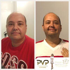 Projeto Vip Nutricional 82 300x300 - Conquistas
