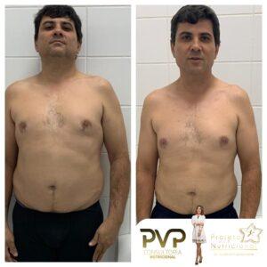 Projeto Vip Nutricional 98 300x300 - Conquistas