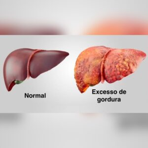 8F90A4DC EFBD 46A5 A288 06B3B14813F6 300x300 - Inimigo silencioso ESTEATOSE HEPÁTICA acúmulo de gordura no fígado.